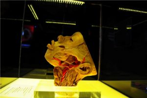 Human Bodies – The Exhibition